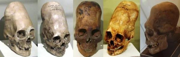 帕拉卡斯頭骨