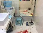 武汉男孩洗澡突遇爆炸 血流一地!元凶可能也在你家(组图)