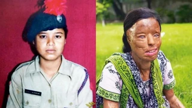 """17岁印度美女拒绝性侵被报复""""硫酸泼脸毁容"""" 手术后活出奇迹得到完美的生活!"""