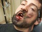 """电子烟受害者公开""""脸部被炸伤""""的惨状(图集)"""