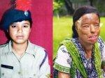 """17岁印度美女拒绝性侵被报复""""硫酸泼脸毁容"""" 手术后活出奇迹得到完美的生活!(图集)"""