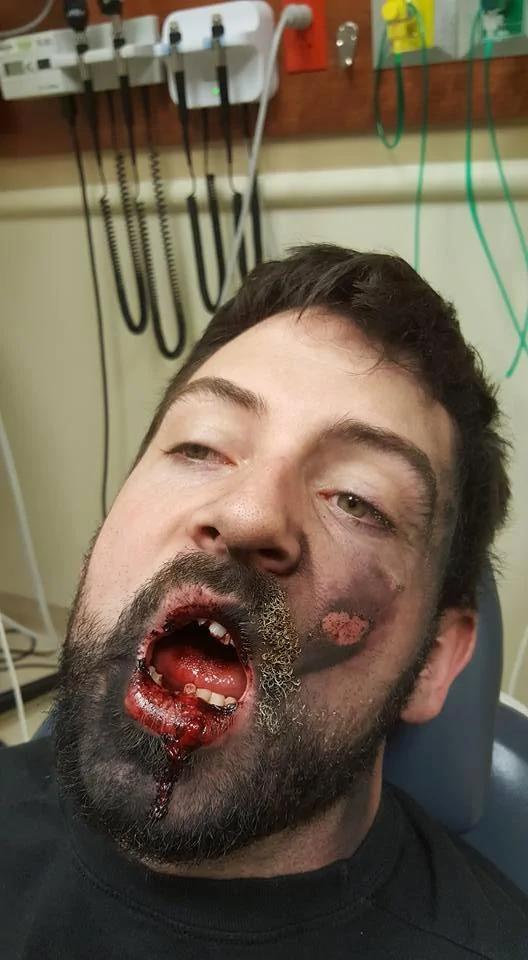 电子烟突然爆炸有多恐怖?美国男子被炸懵了
