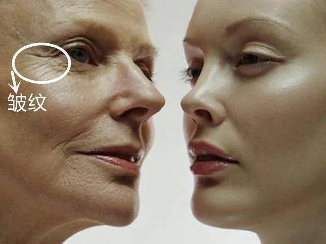 五毛钱的它 每天用来擦脸50岁没眼袋没皱纹(图)