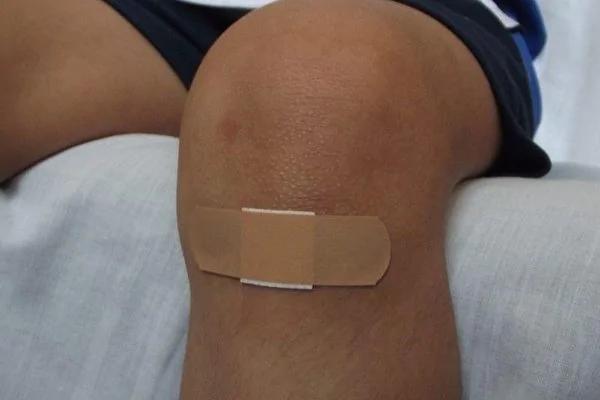 伤口处理做对了吗?专家教4招愈合快疤痕少