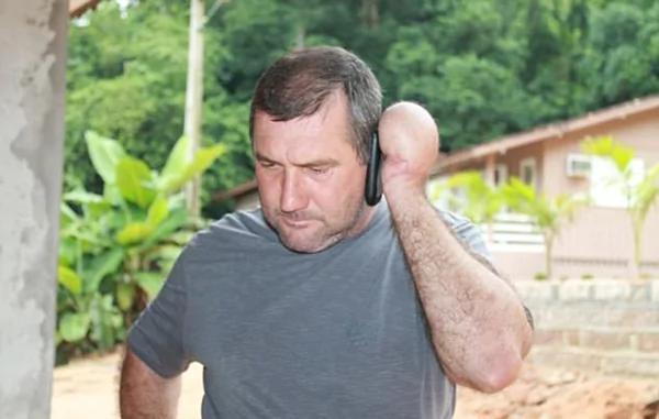 巴西男子重伤左手被缝进肚子以让组织再生