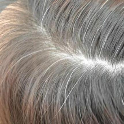 白发太多别傻傻跑去染 每天洗头加点它 有效乌发还有不伤头皮
