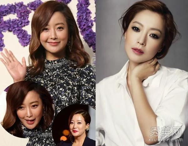 韩国第一美女金喜善发福 整容后遗症显现